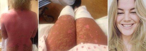 Madeleine fikk kraftig reaksjon på antibiotika. Hun fikk sykdommen TEN, og mistet 90 prosent av huden på kroppen.