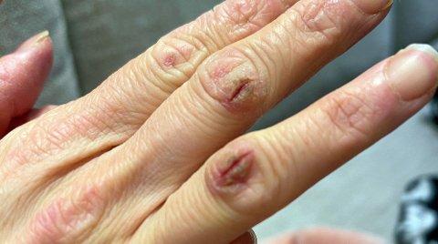 Tørre hender med åpne sår som ikke gror, har blitt et problem for mange, og er spesielt utbredt på vinteren med tørr og kald luft.
