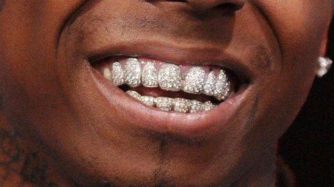DIAMANTER: Å ha munnen full av dyre diamanter krever godt vedlikehold.