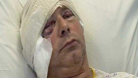 AU, DA: Her er Shakataks keyboardist Bill Sharpe etter ansiktsløftingen.