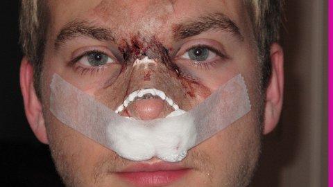 Operasjonsbilde etter neseoperasjon nr. 2 12. oktober 2010. Med tillatelse av Mørch Husby.