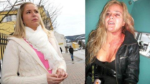 OVERFALT: Sandra Isaksen og en venninne ble brutalt overfalt av en ungdomsgjeng på Notodden i august i fjor.