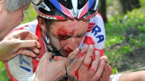 En blodig Leif Hoste (Katjusja) etter den første etappen under Driedaagse De Panne.