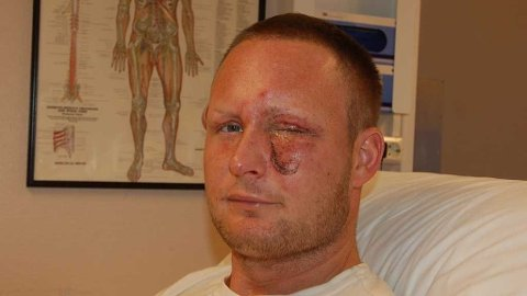 - Jeg har vært utrolig heldig, sier Thomas fra sykesengen i Arendal. Han har fått sydd 10 sting der raketten traff, men det bekymrer han ikke. Det viktigste er at han har syn på begge øynene.