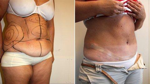 BUKPLASTIKK: Flere og flere får utført operasjonen bukplastikk. Bildet viser magen før oprerasjonen og tre måneder etter bukplastikk.