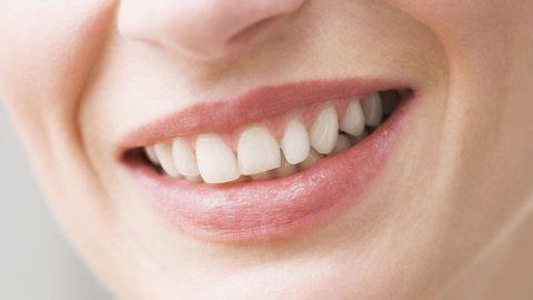 HVITT SMIL: Vi ønsker alle et pent smil, med rene og hele tenner. Tannimplantater blir stadig vanligere for de som trenger å erstatte egne tenner.