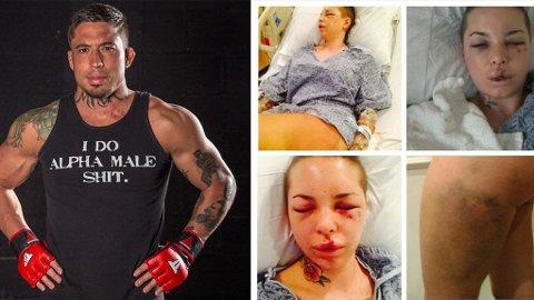 GUL OG BLÅ: Disse bildene la pornostjernen Christy Mack ut på Twitter etter hendelsen. Foto: Montasje