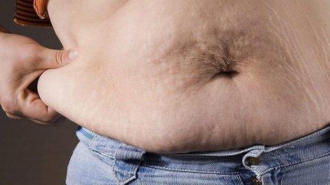OVERVEKT: I løpet av de nesten 15 årene, er tre av fire norsek menn overvektige, melder WHO.