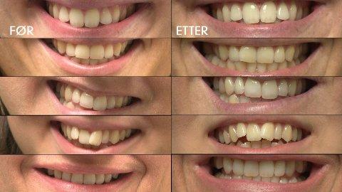 Testpersonene hadde ingen effekt av tannblekingsproduktene.