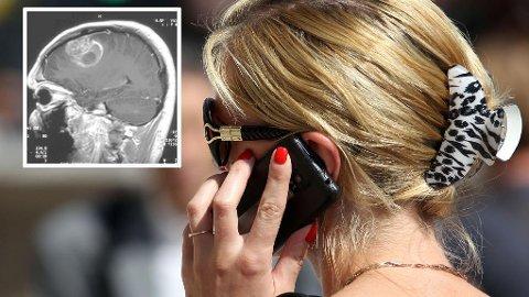 Forskerne bak en ny rapport antyder at doblingen av ondartede hjernesvulst-tilfeller de siste 20 årene, skyldes livsstilsfaktorer, deriblant mobilbruk. Svulsttypen Glioblastoma multiforme (innfelt) er den mest aggressive av alle hjernesvulster, og at den har veldig utydelig avgrensning, noe som gjør den vanskelig å fjerne kirurgisk.