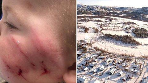 BITT AV REV: Babyen Sander har sår i ansiktet etter revens tenner. Reven oppsøkte gutten mens han lå i barnevognen på Aronnes i Alta. Montasje.
