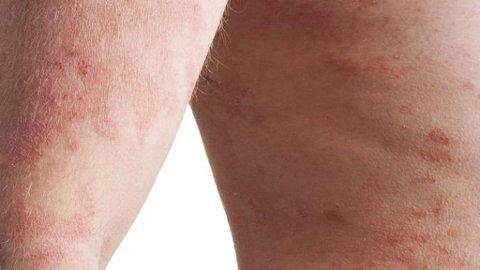 REAKSJON PÅ FOR MYE SOLING: Vablete eller kviselignende utslett kan være et tegn på at huden har fått for mye sol, men det finnes lindrende hjelp om uhellet skulle være ute.