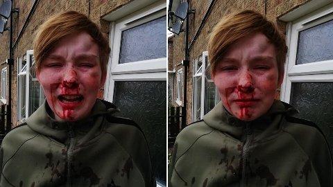 BLODIG: Ellie-Mae Mulholland blødde etter at hun skal ha blitt angrepet av to venner.