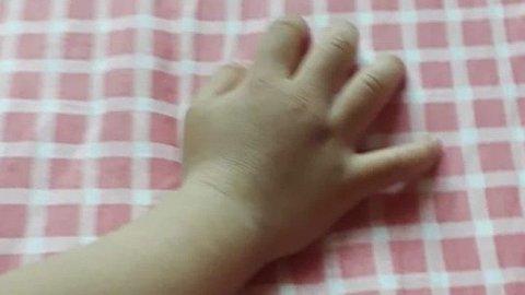 Bildet viser hånden til den to år gamle jenta, som omtales som «B». Familien ønsker å være anonym.