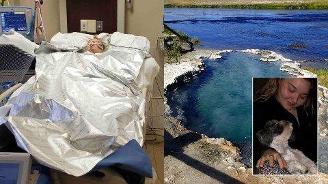 – BEDRE: Laiha Slayton fikk voldsomme brannskader over hele kroppen, men ifølge søsteren er 20-åringen på bedringens vei.