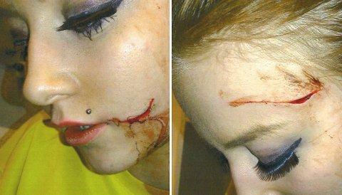 KNIVSKADD: Julia ble skåret med kniv i ansiktet av mannen hun avviste seksuelt. Bildene er gjengitt med familiens tillatelse.