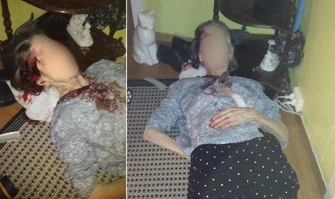 Den 87 år gamle kvinnen fra Larvik kan ha ligget skadd i nærmere to timer før hun ble funnet slik av familien.