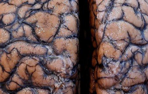 FANT SKADER: Forskere ved University College London (UCL) har undersøkt 43 korona-pasienter med påvist hjerneskade. Bildet viser del av en menneskehjerne utstilt på et sykehus i Duffel i Belgia.