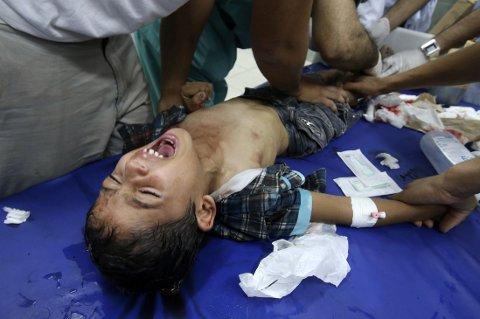 PÅ SYKEHUS: Bomberegnet mot den tett befolkede Gazastripen fortsatte for fullt mandag. Her tar palestinske leger hånd om en gutt på et sykehus i Rafah.