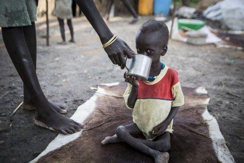 FÅR MAT: Nihal (3) er svært underernært og får behandling på Redd Barnas matklinikk i Akobo i Sør-Sudan. Den blodige konflikten har rammet barna hardest, og Redd Barna frykter at 50.000 barn kan dø om de ikke får hjelp.