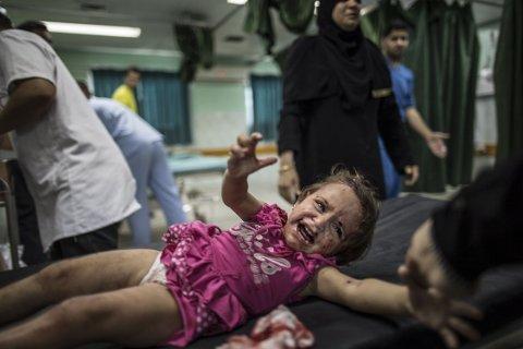 SKADET: En palestinsk jente gråter i smerte på Kamal Adwan-sykehuset nord på Gazastripen tirsdag, etter at hun ble truffet av en splint under et Israelsk militærangrep nær familiens hus.