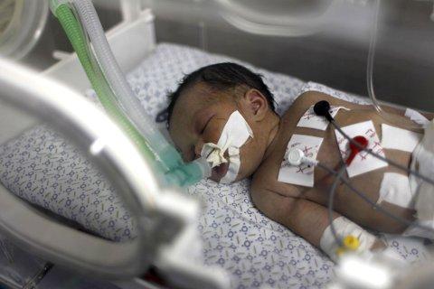 DØDE: Nyfødte Shayma Shiekh al-Eid ble fem dager gammel etter at hun ble reddet ut av magen til sin døde mor.