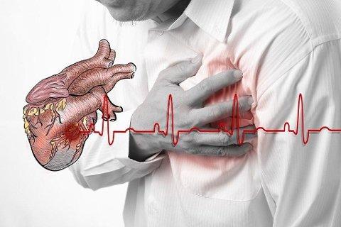 HJERTEINFARKT: 13.000 nordmenn får hjerteinfarkt hvert år.