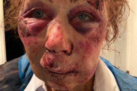 MØRBANKET: Kvinnen ble utsatt for noe mellom Lambertseter og Ekeberg natt til søndag 4. november. Hun tror hun ble overfalt og forsøkt ranet, men husker ingenting.