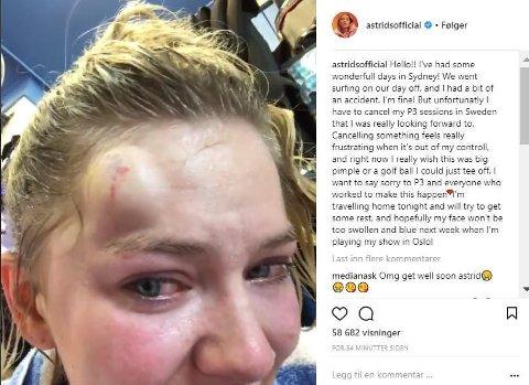 Astrid S la fredag ut dette innlegget på Instagram, hvor hun skriver at hun må avlyse konserten hun etter planen skulle spilt i Sverige.
