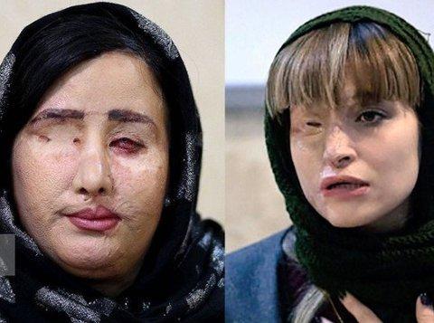 - Iran er det eneste landet i verden med en obligatorisk hijab-lov. Kvinner som opponerer ved å kaste hijaben kan ende opp slik, skriver Mina Bai, og viser til de to kvinnene på bildet.