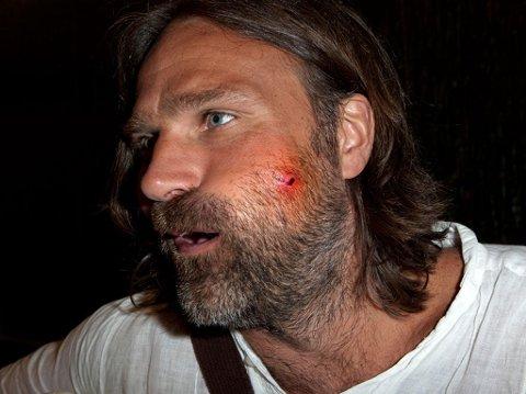 Det er en svært opphovnet Christer Falck som nå må innom sykehuset daglig etter at et tusenben bet ham.
