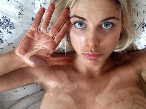 UHELDIG: Slik skal man altså ikke se ut etter å ha brukt selvbruning. Her er det den britiske TV-stjernen Ashley James som har bommet litt.