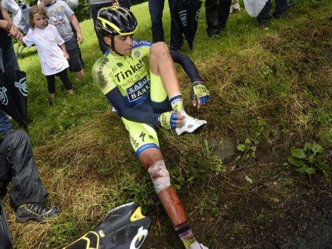 HAR BRUTT: Alberto Contador måtte bryte Tour de France på grunn av et velt. Nå håper han på å rekke Vuelta a España.