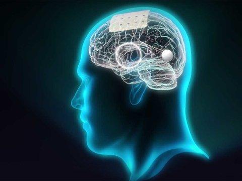 HENTER UT INFORMASJON: Denne uka presenterte forskningsinitiativet Graphene Flagship et prosjekt der de med utgangspunkt i nanomaterialet grafén vil tappe store mengder informasjon rett fra hjernen.