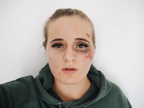 Martine Halvorsen har anmeldt overfallet til politiet i Sverige.