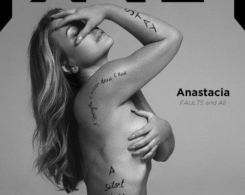 ARR. Anastacia fikk utført dobbelt mastektomi i 2013. Arrene har hun lært å ikke hate, forteller hun til fault magazine.