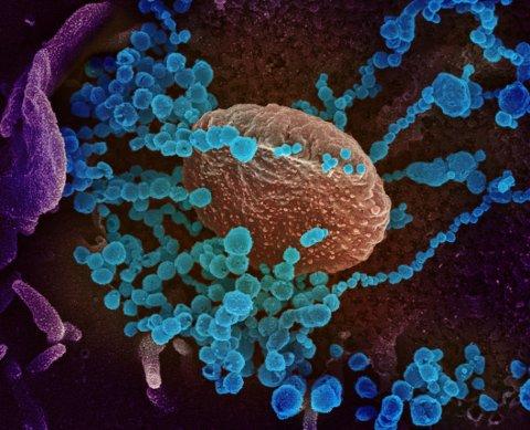 I MIKROSKOPET: Et bilde tatt med elektronmikroskop viser SARS-CoV-2 som blå, runde baller som dukker opp på overflaten på en celle dyrket fram i et laboratorium.