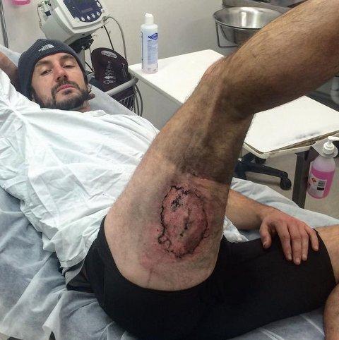 EKSPLOSJON: Gareth Clear fikk tredjegrads forbrenning etter mobiltelefonen eksploderte i lomma hans.
