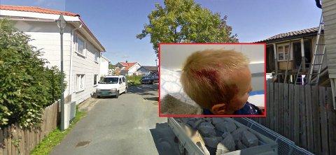 I denne gaten ble Samuel Hagenes Hansen (9) bitt av de samme hundene 1. juli.