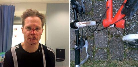 BLE SYDD: Ti sting i haken, brukket nese og en mengde skrubbsår ble resultatet av Pål Tangens ublide møte med asfalten, etter at gaffelrøret ga etter.