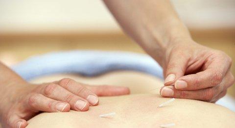 FORSKNING: Innsenderen viser blant annet til forskningsresultater om virkningen av akupunktur.                                            FOTO: COLOURBOX