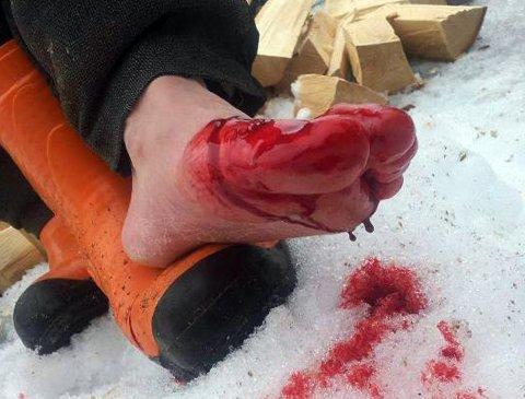 Den olympiske mesteren Olaf Tufte kappet seg i foten med øks tirsdag ettermiddag.