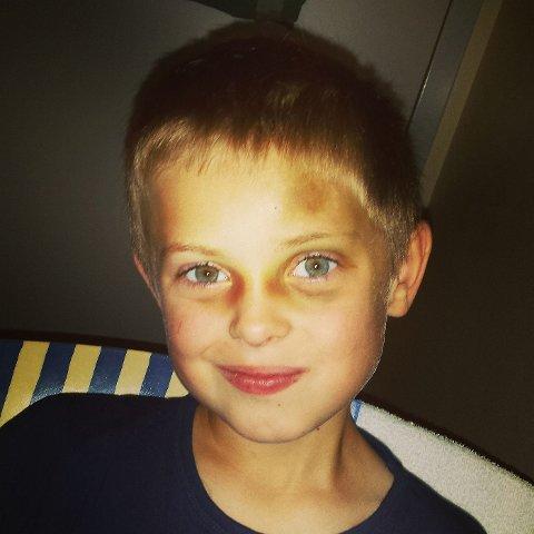 BLÅVEIS: Noah (8) måtte gjennom en lang rehabilitering etter ulykken.