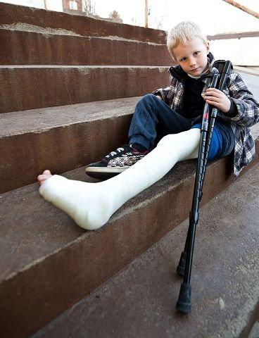 Hadde mye vondt. Vemund (6) hadde i realiteten et benbrudd da han kom til sitt lokale legekontor for å få hjelp. Legen mente det ikke var noe brudd, og ba gutten komme tilbake dersom det ikke ble bedre. Nå har det hele endt med krykker og gips. Foto: Erik Hagen