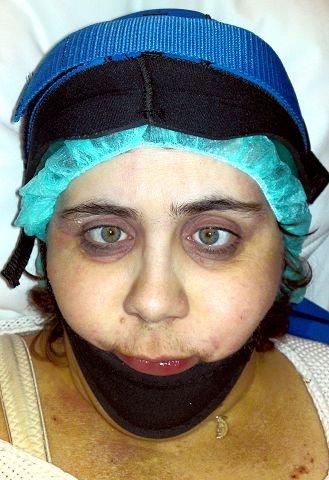 Fossli fikk hetta da hun mistet håret, derfor får hun nå ishettebehandling på Ullevål universitetssykehus i forbindelse med en ny cellegiftkur. Foto: Privat